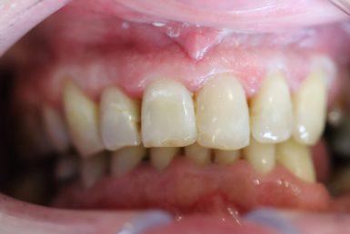 Before - Abacus Dental