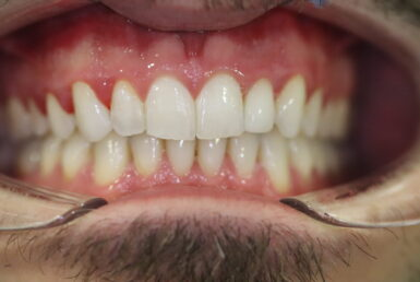After - Abacus Dental